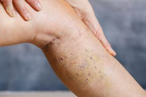 Come curare le cicatrici