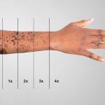 laser per togliere tatuaggi