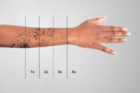 Laser per rimuovere tatuaggi